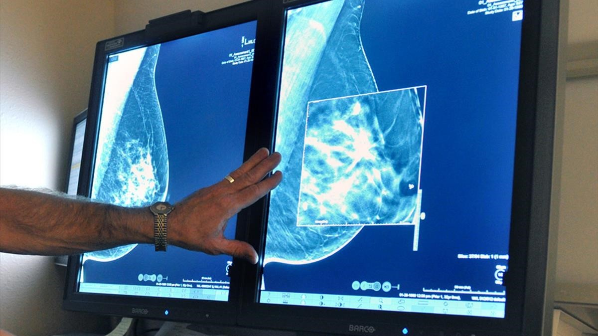 Examen radiológico de un cáncer de mama. /TORIN HALSEY